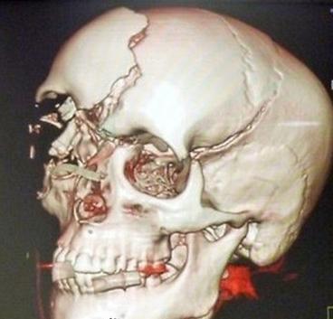 Maria del Villota 3D skull